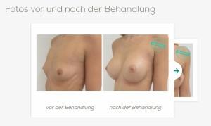 Schönheits- und Brust-Operation in Tschechien